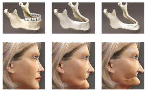 Альвеолярная часть челюсти