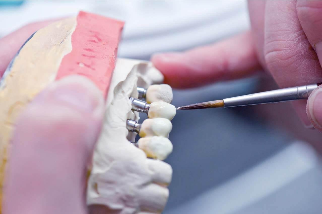 Аутогенные трансплантационные материалы