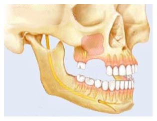 Боковой отдел верхней челюсти
