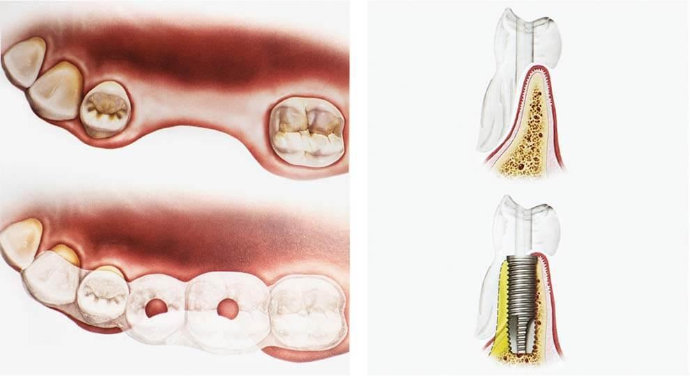 Челюстно-лицевой аппарат и фиксация зуба