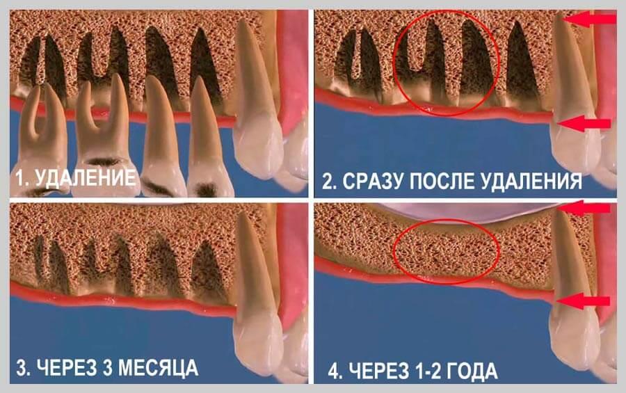 Деструктивные изменения в зубах и костной ткани