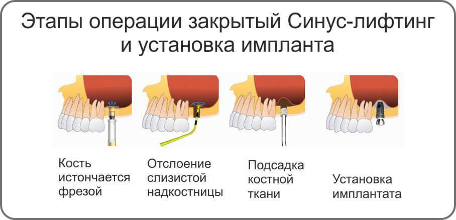 Этапы проведения процедуры закрытого синус лифтинга