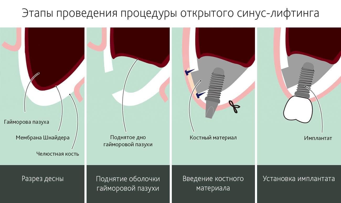 Этапы проведения процедуры открытого синус лифтинга