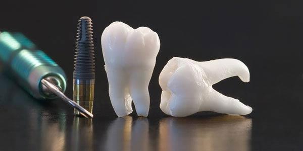 Имплант и зубы