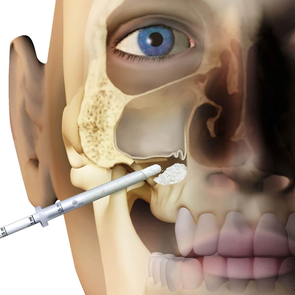 Наполнение костной тканью верхней пазухи