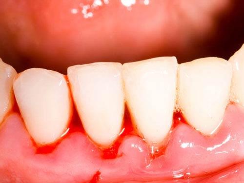Кровь на деснах и зубах