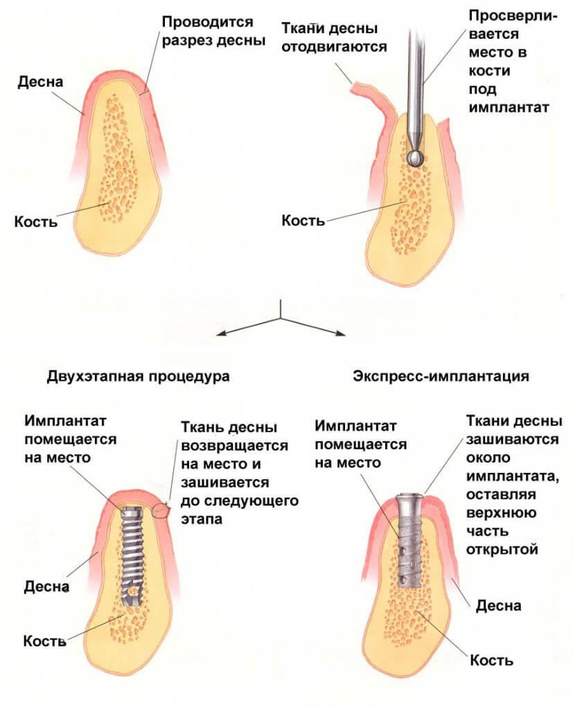 Основные методики установки имплантов и их характеристика