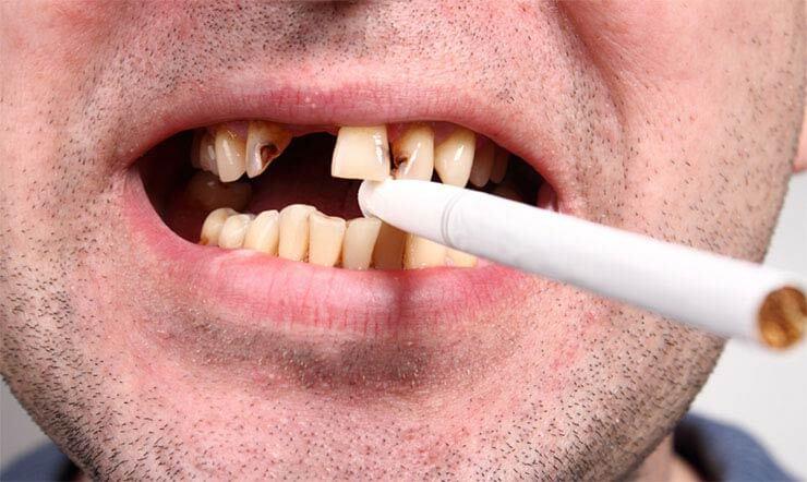 Сигарета в зубах