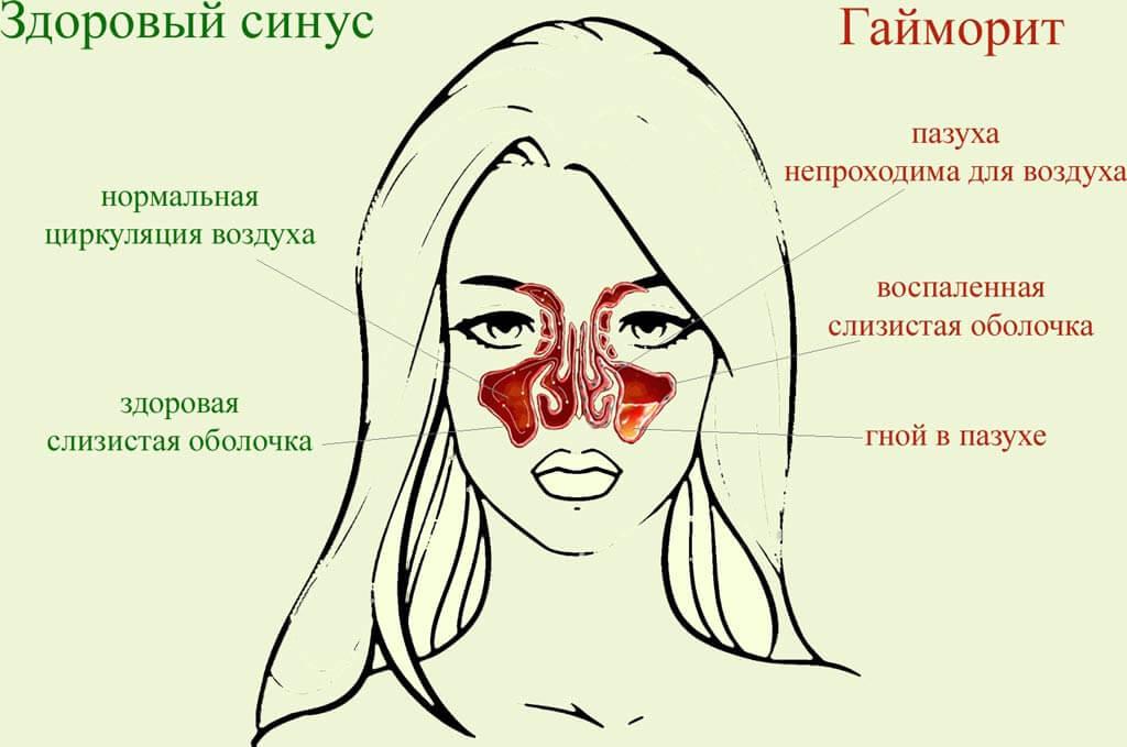 Сравнение здорового синуса и гайморита