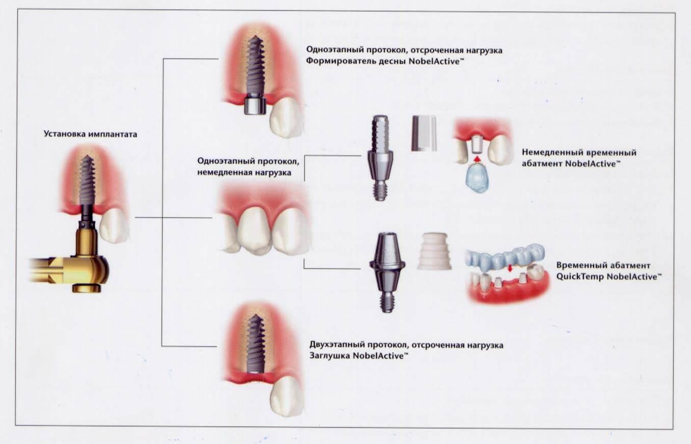 Три вида имплантов