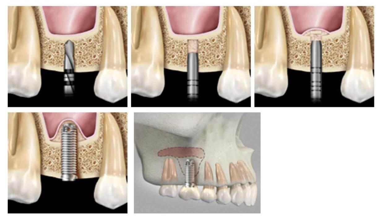 Установка импланта в верхнюю челюсть