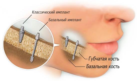 Илюстрация классического и базального импланта