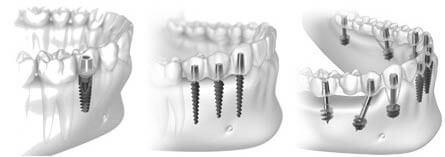 Импланты в нижней челюсти
