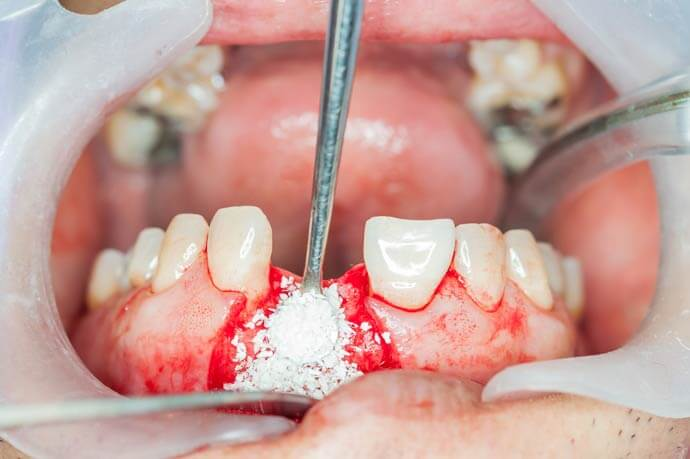 Костная пластика зуба нижней челюсти