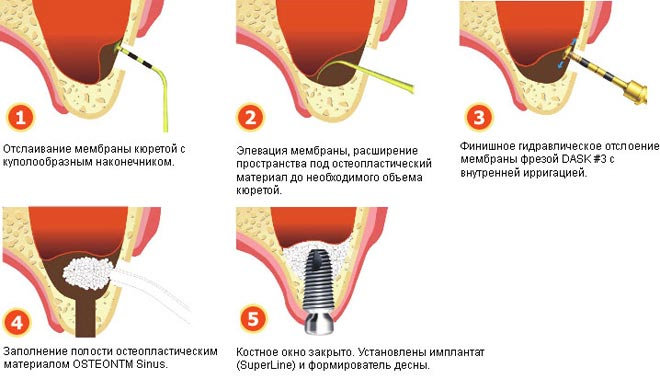 Методика проведения модифицированного синус-лифтинга