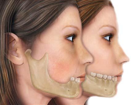 Нижняя челюсть женщины вид сбоку