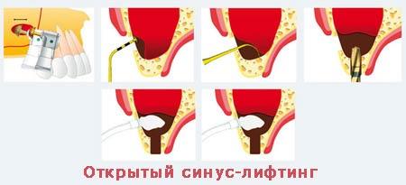 Процедура открытого синус лифтинга
