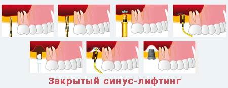 Процедура закрытого синус лифтинга