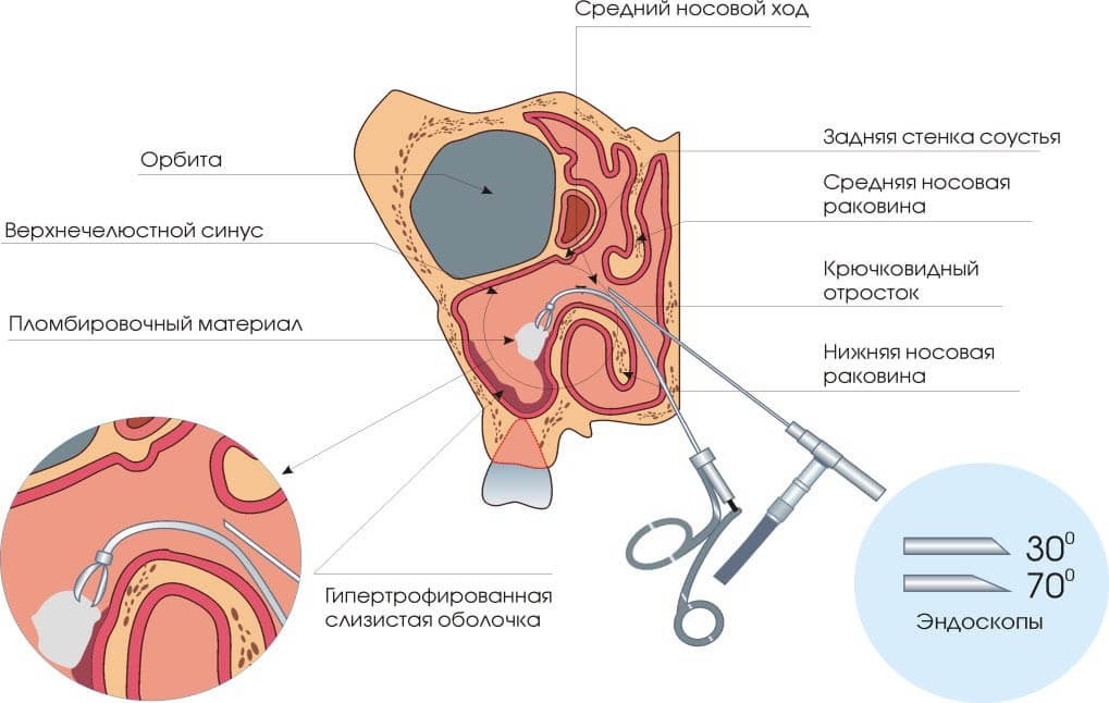 Схема удаления гайморовых кист