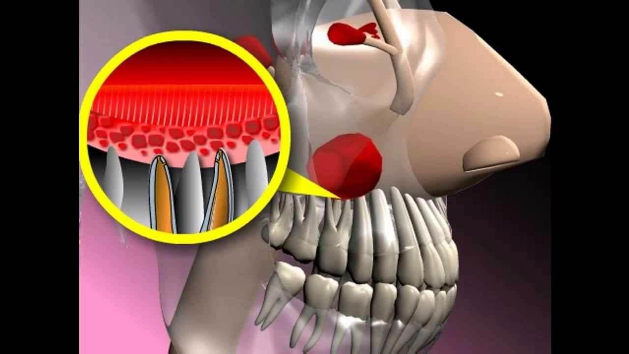 Строение верхней челюсти в разрезе