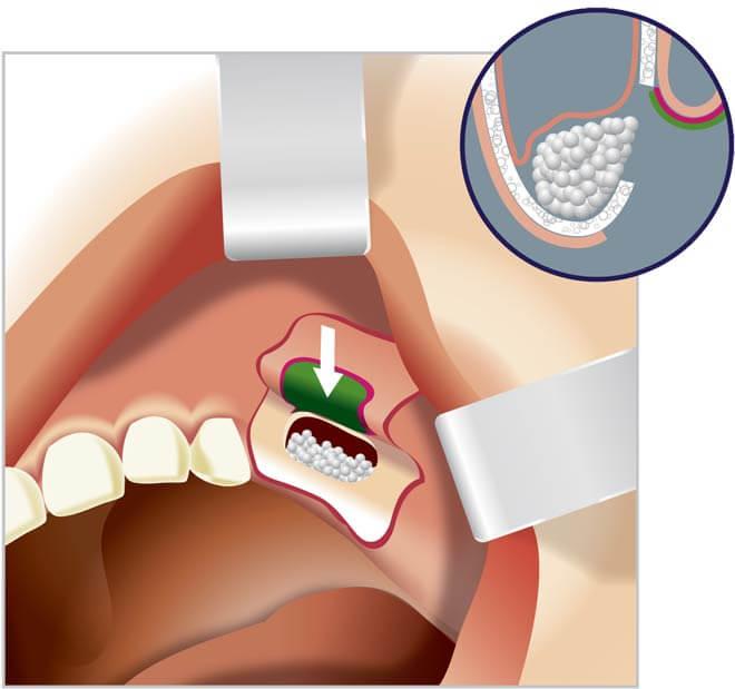 Верхняя челюсть в области передних жевательных зубов
