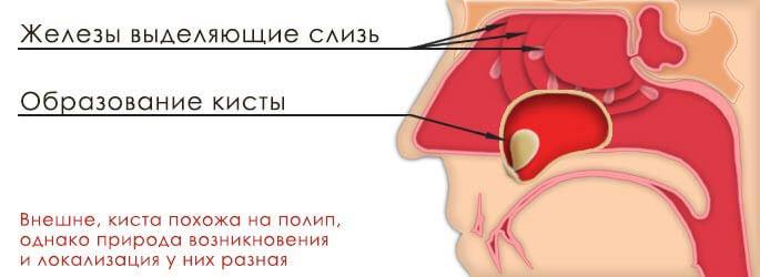 Железы выдиляющие слизь и образование кисты