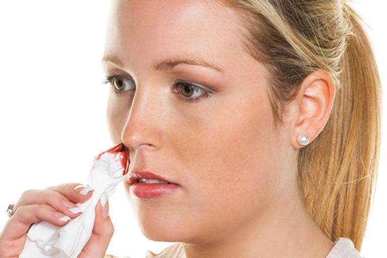 Девушака останавливает кровотечение носа носовым платком