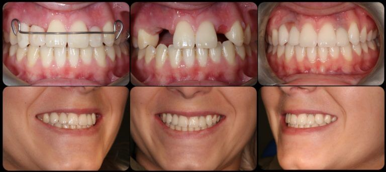 До и после комплексной имплантации