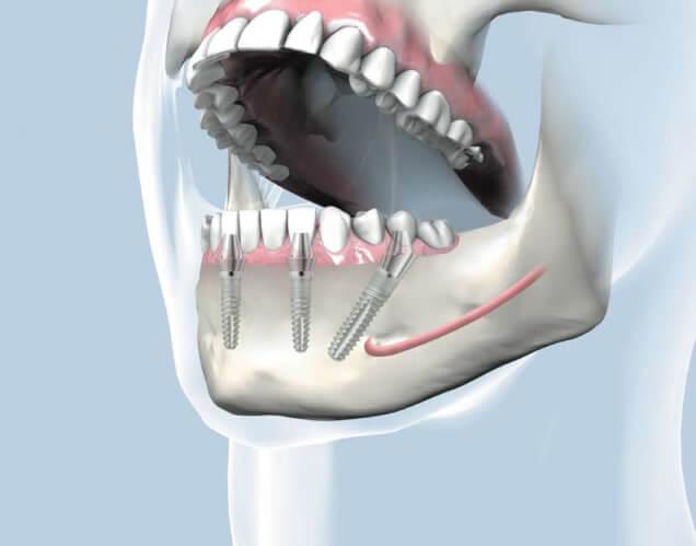 Графическое изображение челюсти человека