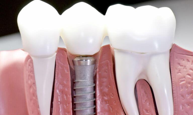Имплант и здоровые зубы