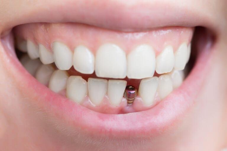 Имплант на нижней челюсти