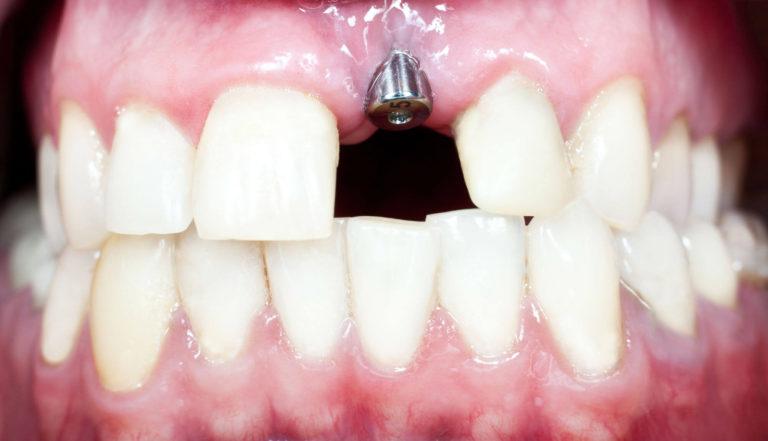 Имплант в верхней челюсти