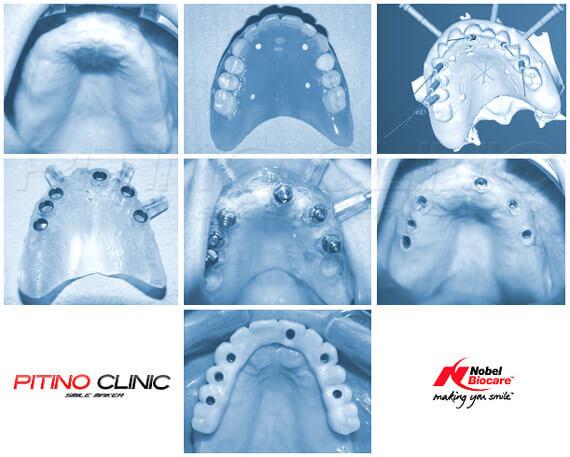 Имплантация по технологии Nobel Guide на верхней челюсти