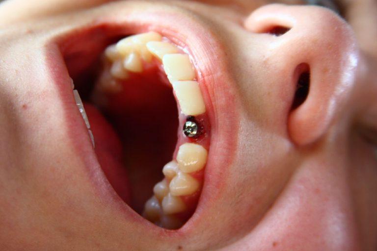 Имплантация верхней челюсти без костной пластики