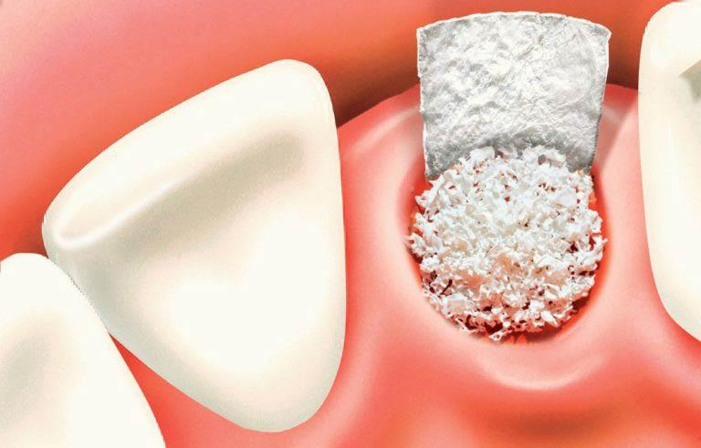 Костная ткань помещена на место удаленного зуба