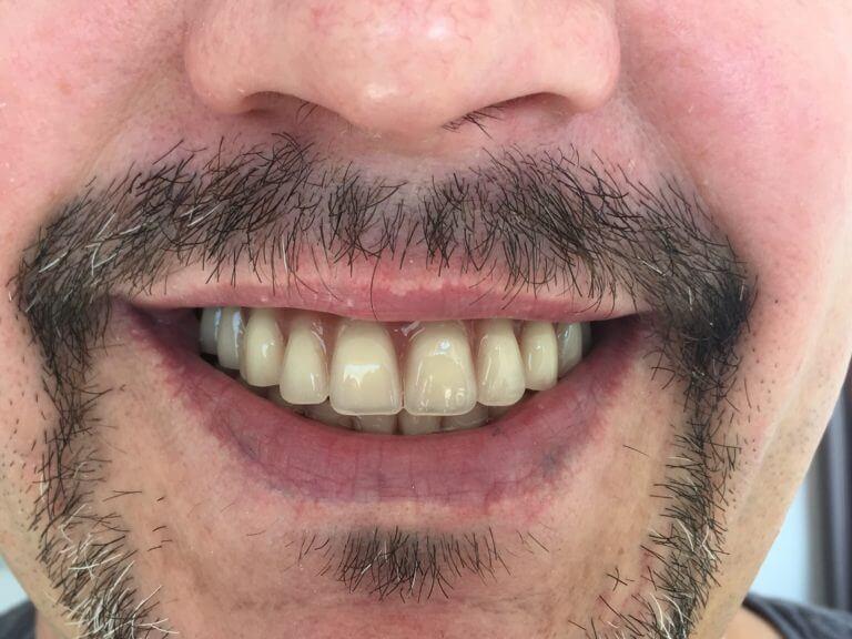 Лицо и зубы мужчины