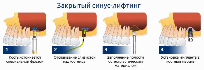 Методика закрытого синус лифтинга
