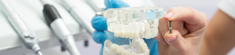 Мини-имплант и модель челюсти
