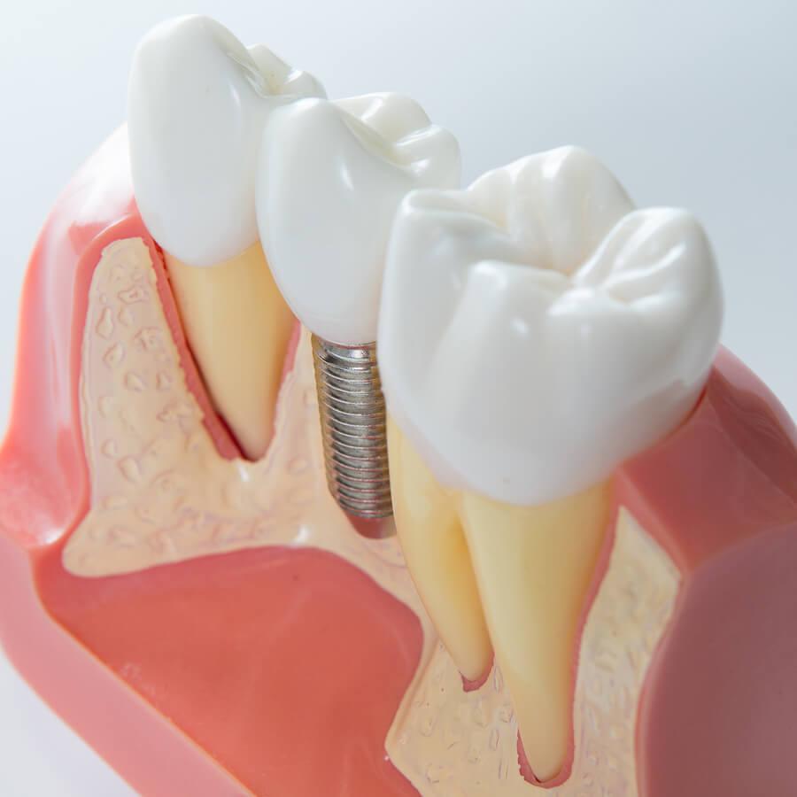 Модель имплантации зубов