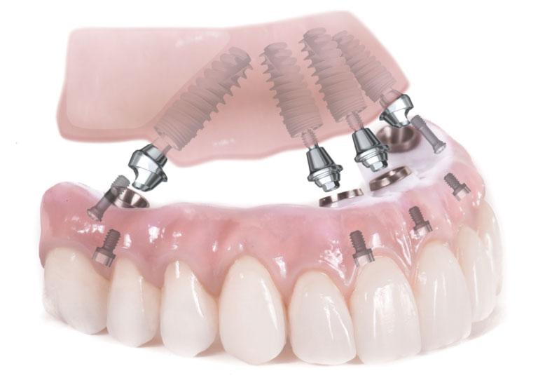 Модель верхней челюсти с имплантами