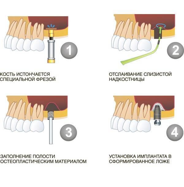 Операция выполнения доступа к гайморовой пазухе