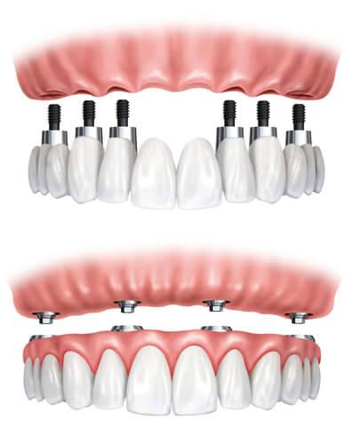 Поэтапная имплантация зубов