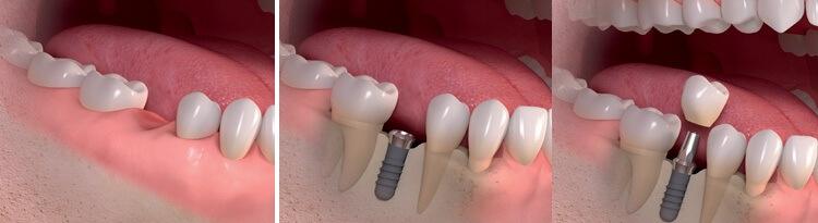 Процесс вживления импланта и установки протеза