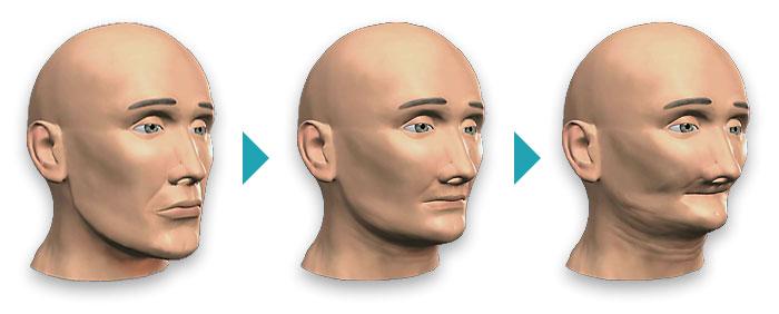 Рассасывание или резорбция кости в альвеолярном отростке