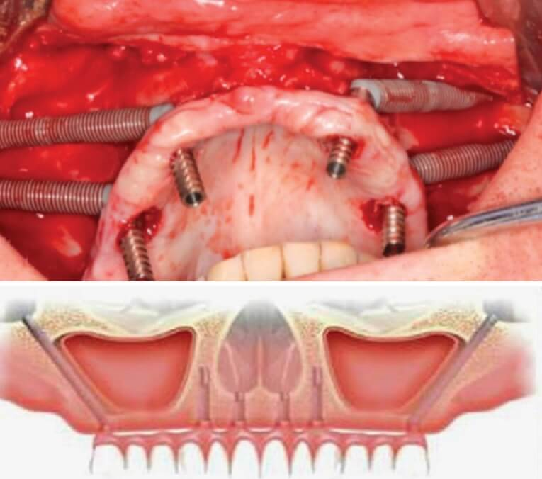 Расщепление альвеолярной верхушки