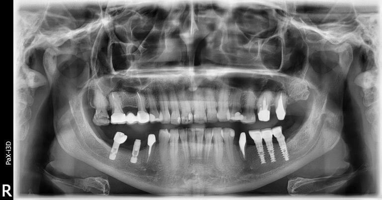 Рентгенография верхней челюсти