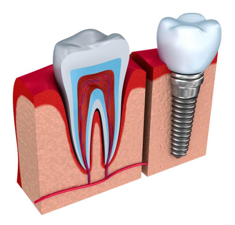 Сравнение импланта и здорового зуба
