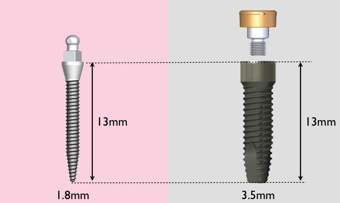 Сравнение имплантов