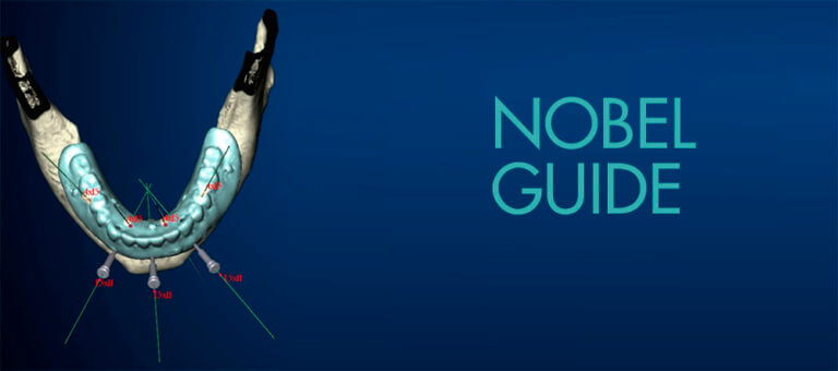 Технология Nobel Guide