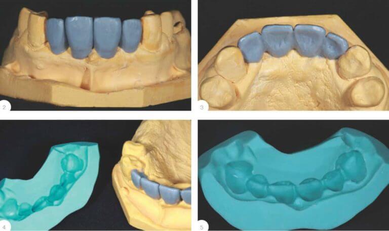 Трехмерное изображение челюстей пациента
